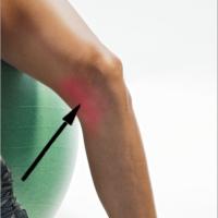 Навяхване на вътрешната колатерална връзка / MCL sprain