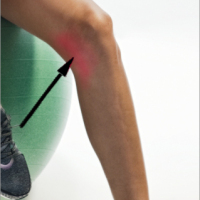 Частична руптура на Медиална Колатерална Връзка / Partial rupture of the medial collateral ligament (MCL)