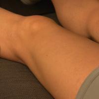 Below-knee femoro-popliteal bypass