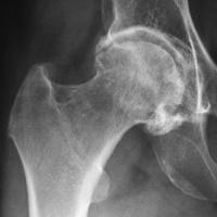 Артроза на тазобедрената става - коксартроза (Coxarthrosis)